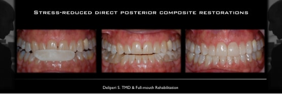 Full-mouth-rehab-via-SRDC-restorations-wear