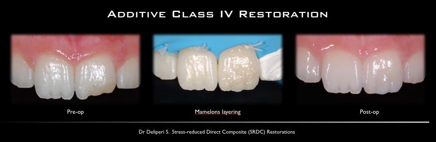 Additive class IV restoration