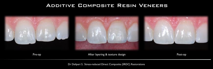Additive composite resin veneers