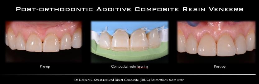 Post Orthodontic additive composite resin veneers