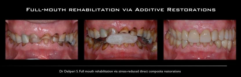 full mouth rehabilitation via additive restorations