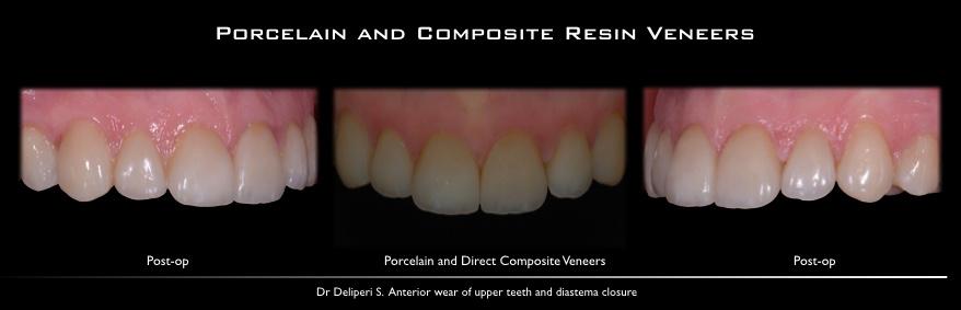 porcelain and composite resin veneers