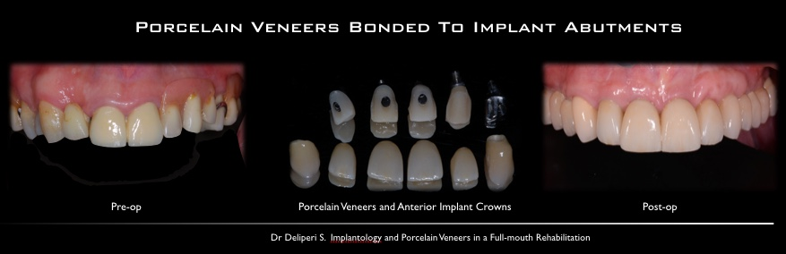 porcelam veneers bonded to implant abutments
