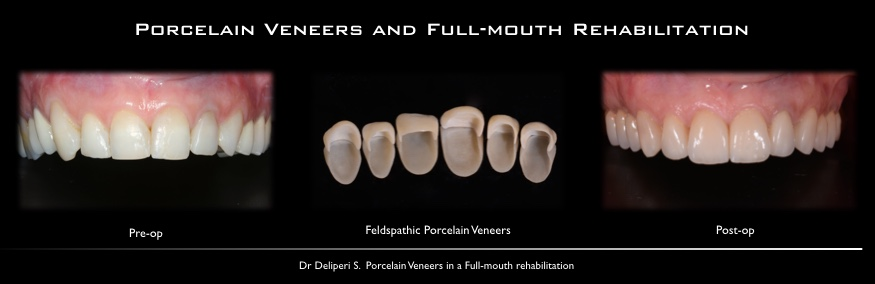 porcelan veneer and full mouth rehabilitation