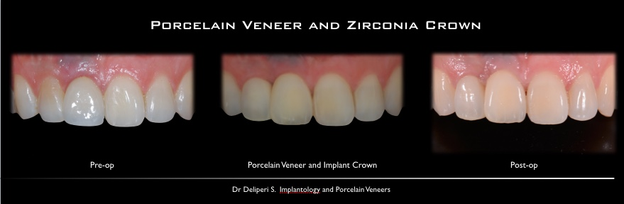 porcelan veneer and zirconia crown